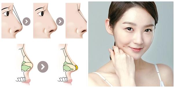 Nâng mũi có bị biến chứng không?