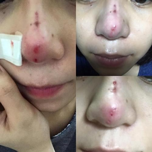 Phẫu thuật nâng mũi có bị biến chứng không là lo lắng của bạn?