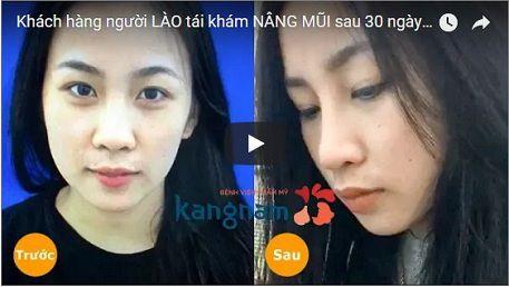 Nâng mũi S line hết bao nhiêu tiền tại Kangnam?