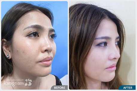Giới thiệu chuyên khoa thẩm mỹ mũi tại bvtm kangnam 5