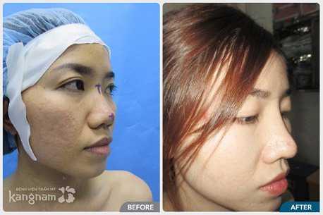 Giới thiệu chuyên khoa thẩm mỹ mũi tại bvtm kangnam 6