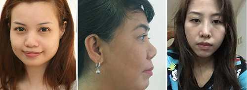 Giới thiệu chuyên khoa thẩm mỹ mũi tại bvtm kangnam 3