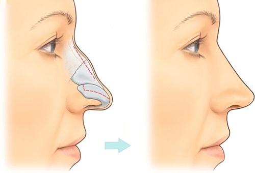 Cách sửa mũi quặp do xương đầu mũi phát triển
