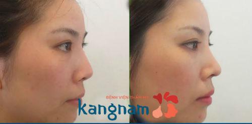 Kết quả chỉnh sửa mũi quặp và hếch tại Kangnam