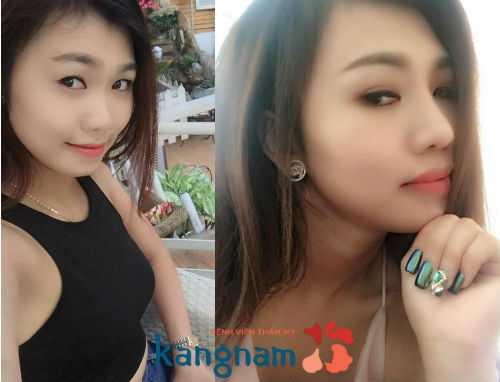Hotgirl Anna Trịnh chia sẻ kinh nghiệm nâng mũi