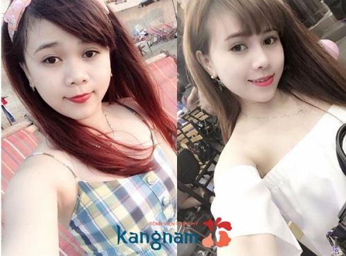 Khách hàng Kangnam chia sẻ cách chăm sóc sau nâng mũi