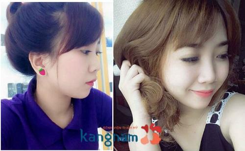 Chia sẻ cách chăm sóc sau nâng mũi tại Kangnam