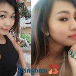 Hotgirl Anna Trịnh chia sẻ kinh nghiệm nâng mũi thực tế tại Kangnam