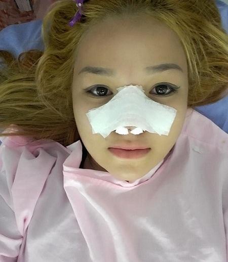 Cách chăm sóc sau nâng mũi cấu trúc 1