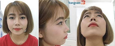 hình ảnh quy trình phẫu thuật nâng mũi 3