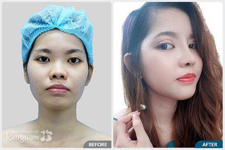 hình ảnh quy trình phẫu thuật nâng mũi 4