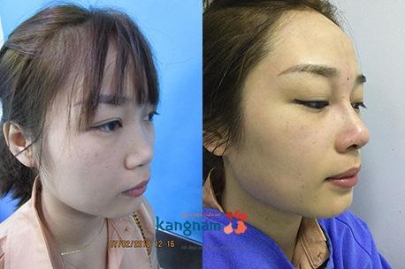 hình ảnh trước và sau nâng mũi 10