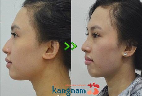 hình ảnh trước và sau nâng mũi 11