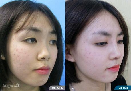 hình ảnh trước và sau nâng mũi 12