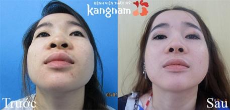 hình ảnh trước và sau nâng mũi 13