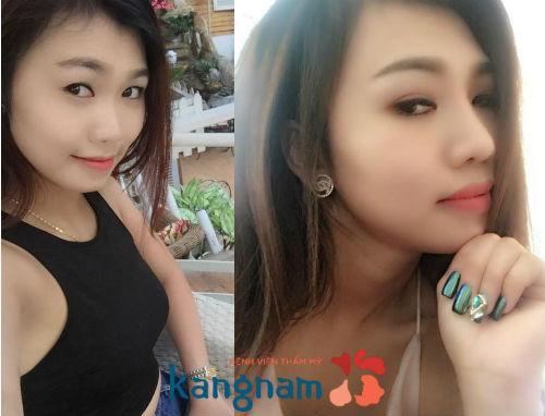 Giá nâng mũi cấu trúc là bao nhiêu tại BVTM Kangnam?