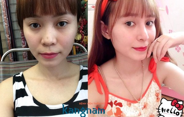 nen-sua-mui-lan-2-bang-phuong-phap-nao-4