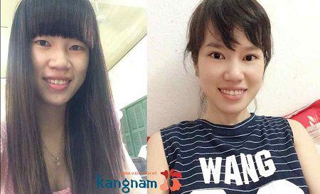 Kết quả khắc phục mũi to tại Kangnam?