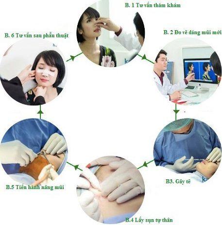 Quy trình chống mũi bằng sụn tai tại Kangnam