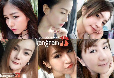 Rất nhiều người đã chống mũi thành công tại Kangnam