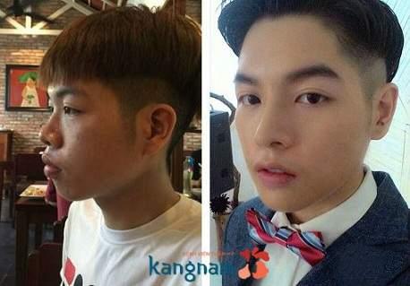 Chống mũi tại Kangnam là như thế nào?
