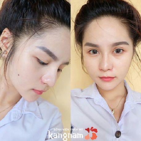 Hiệu quả chống mũi tại Kangnam