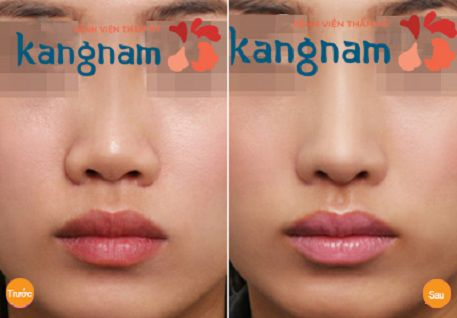 Kết quả nâng mũi bằng filler tại Kangnam