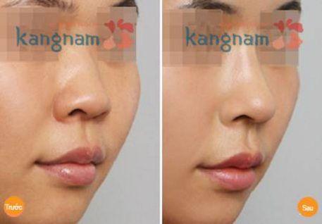 Kết quả nâng mũi bằng chất làm đầy tại Kangnam