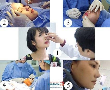 Quy trình nâng mũi bọc sụn tại BVTM Kangnam