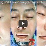 [  LIVESTREAM – HD ] Nâng mũi L line cho nam giới cùng Êkip thực hiện cho Đức Phúc