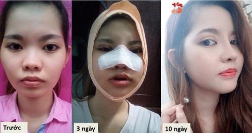 Nâng mũi có đau không 4