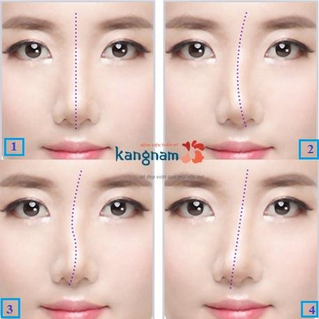chỉnh sửa mũi lệch 1