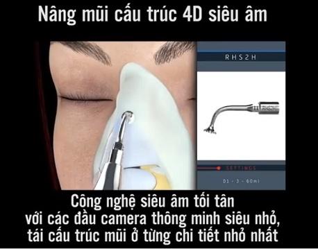chỉnh sửa mũi lệch 11