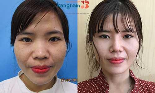 Nâng mũi có ảnh hưởng gì không 3