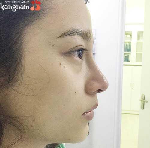 Nâng mũi có ảnh hưởng gì không 1