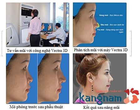 Nâng mũi có hại không?