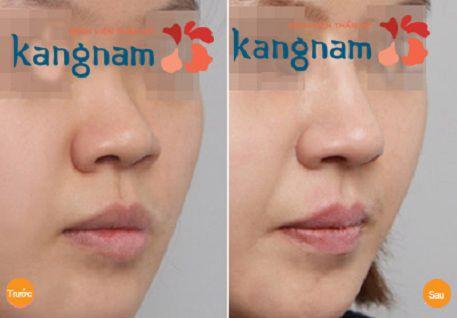 Khách hàng chia sẻ nâng mũi bằng radies có tốt không?