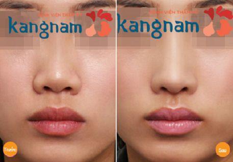 Phẫu thuật nâng mũi bằng radies có tốt không?