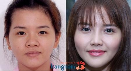 Thay đổi hoàn toàn diện mạo sau thu nhỏ đầu mũi kết hợp nâng mũi tại Kangnam