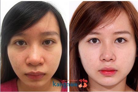 Phẫu thuật thu gọn đầu mũi- Mang sự tự tin đến cho bạn