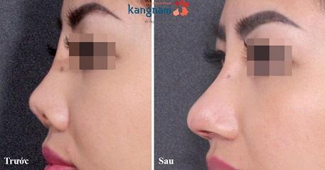 Phẫu thuật nâng mũi cấu trúc 4D