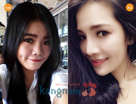 Khách hàng Kangnam chia sẻ nâng mũi s line bao lâu thì đẹp tự nhiên?