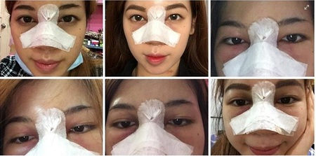 Khách hàng Kangnam chia sẻ nâng mũi bao lâu thì đẹp?
