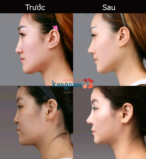 Nâng mũi cấu trúc 4D 1