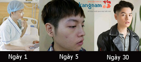 Nâng mũi có để lại sẹo không? 23