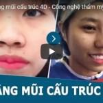 [Video] Cận cảnh những màn lột xác sau nâng mũi cấu trúc 4D tại Kangnam