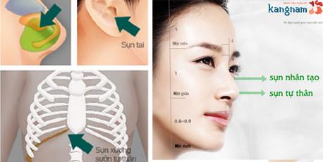 Các loại sụn tự thân dùng trong nâng mũi cấu trúc