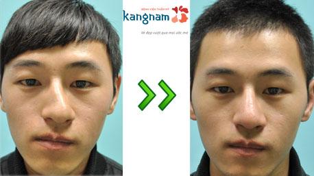 chỉnh sửa mũi lệch 7