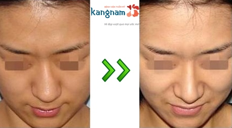chỉnh sửa mũi lệch 5