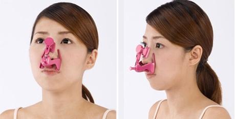 thu gọn cánh mũi không phẫu thuật 5